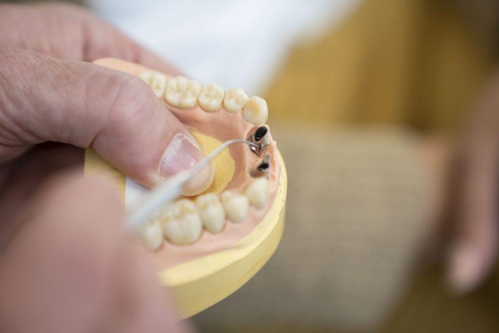 Ästhetischer Zahnersatz 3